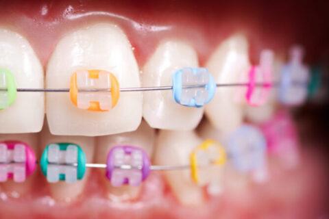 Apparecchio dentale ortodontico per i bambini