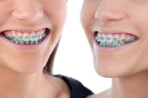 Apparecchi dentali colorati ed estetici
