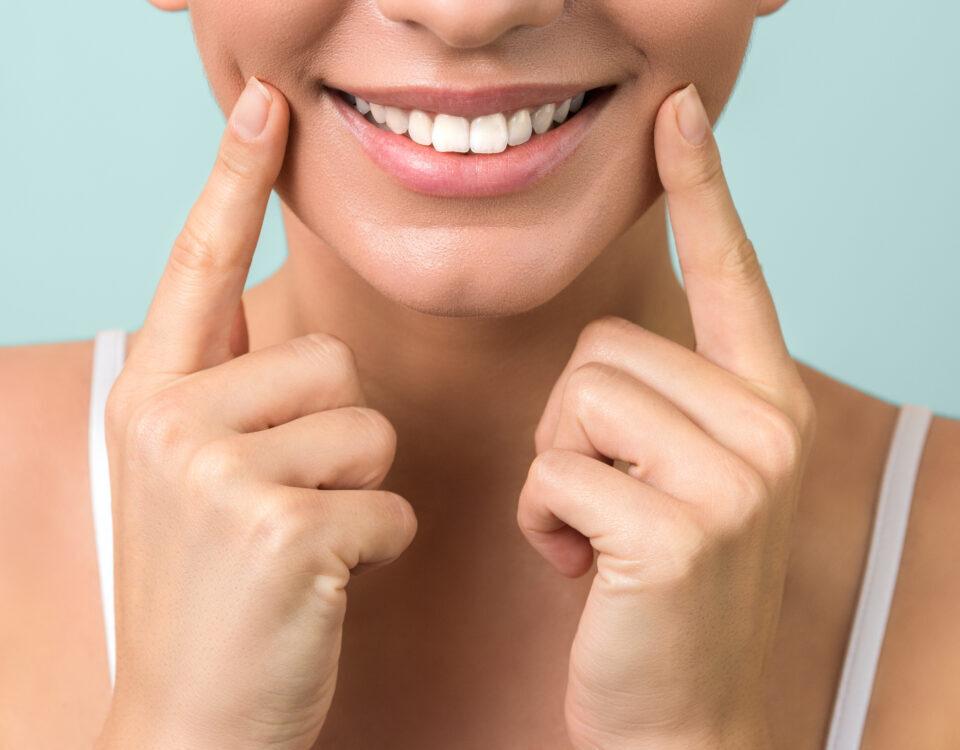Sorriso perfetto grazie alle faccette dentali