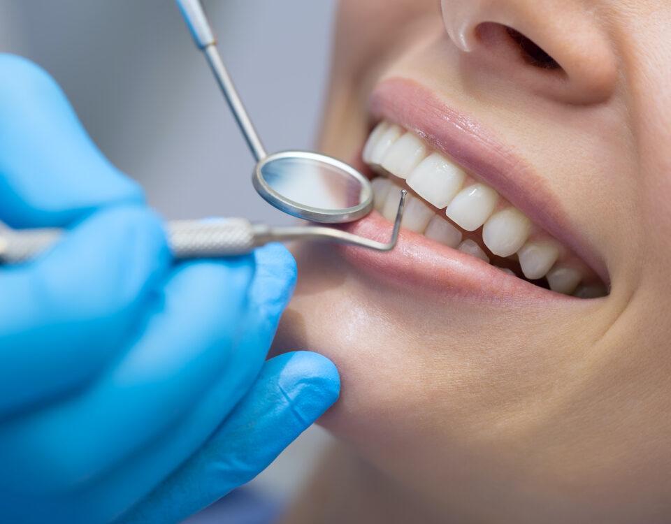 Sorriso perfetto grazie alla pulizia dentale
