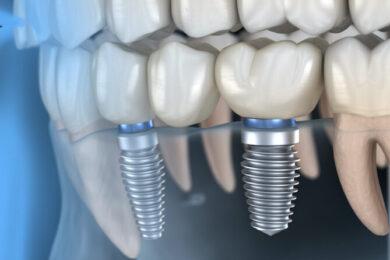 Impianto dentale e ponte su impianti dentali